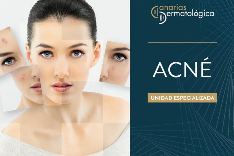 2019-10 Crea CD Acne_LD
