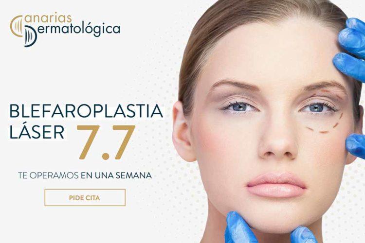 blefaroplastia 2